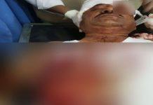 bear-attack-on-bjp-leader-in-chhattisgarh-