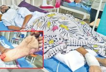 ratlam-news-rats-bite-patient-foot-in-government-hospital-admitted-in-icu-