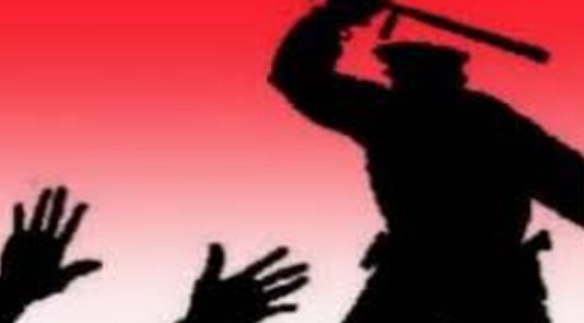 women-charged-of-illegal-recovery-on-police
