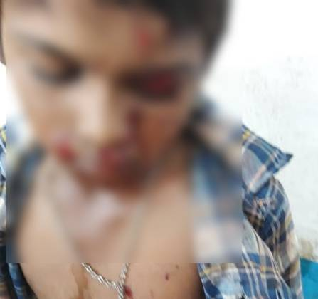 blast-in-mobile-while-charging-in-dhar-district-boy-injured
