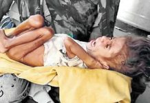 malnourished-four-year-old-child-found-in-state-capital