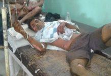 cyclinder-blast-in-ashoknagar-one-injured-badily