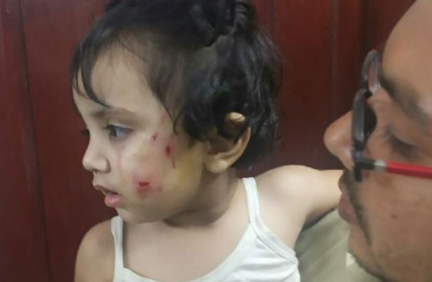 dogs-attack-on-two-and-a-half-year-old-innocent-girl-in-bhopal-
