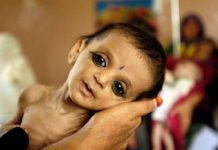 when-will-malnutrition-free-capital-bhopal
